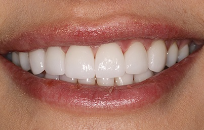 Closeup of bright white teeth