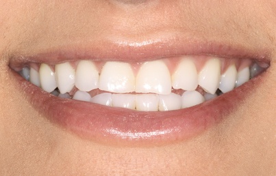 Closeup of yellowed teeth