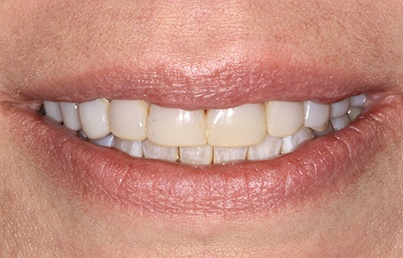 Closeup of discolored teeth