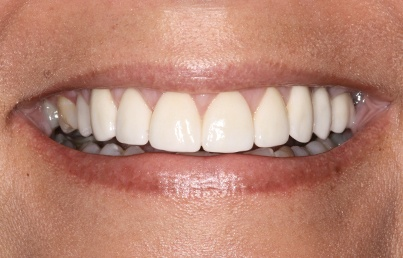 Closeup of corrected and whitened teeth