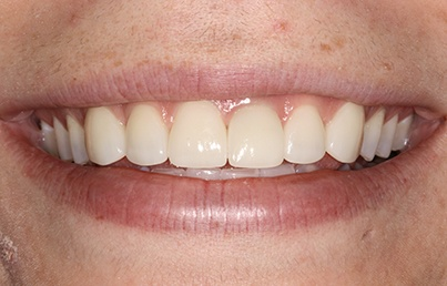 Closeup of teeth with even smile line