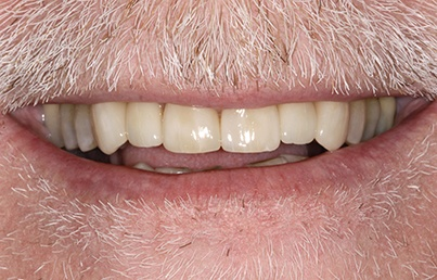Closeup of natural looking denture
