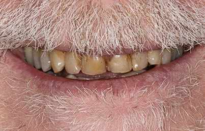 Closeup of unnatural looking upper denture