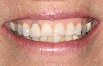 Closeup of damaged and uneven smile line