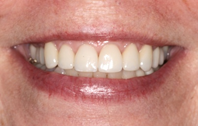 Closeup of whole healthy looking smile