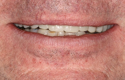Smile after dental implant placement