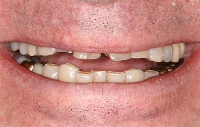 Smile with numerous missing and damaged teeth