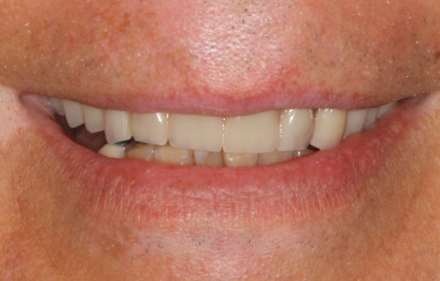Closeup of smile following complete tooth replacement
