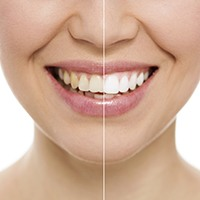 Teeth split to show before and after whitening tooth coloring