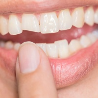 Photograph of a badly chipped front tooth