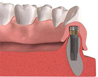 Dental implant post below gum line animation