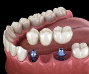 Model showing types of dental implants.